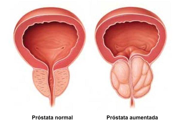 Hiperplasia (Aumento) de Próstata