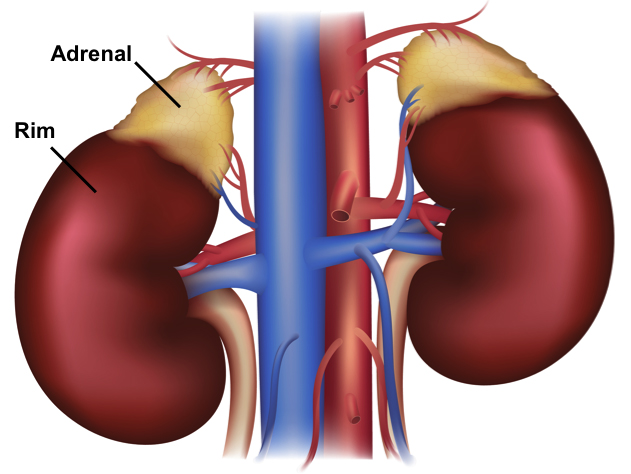 Doenças da adrenal