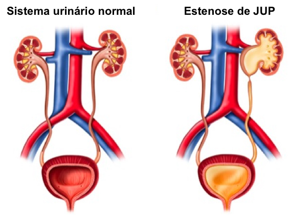 Estenose da Junção Uretero-Piélica (JUP)