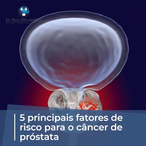 NOVEMBRO AZUL: 5 Principais Fatores de Risco para o Câncer de Próstata