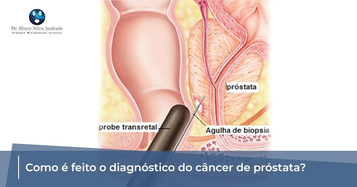 cancer de prostata diagnostico)