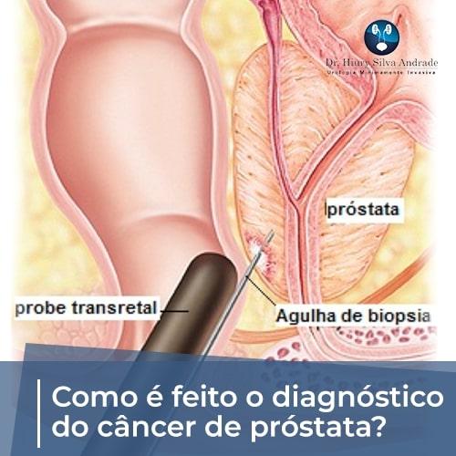 Novembro azul: Como é feito o diagnóstico do câncer de próstata?