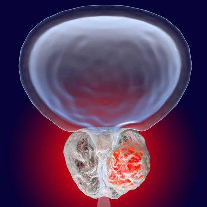 causas do câncer de próstata