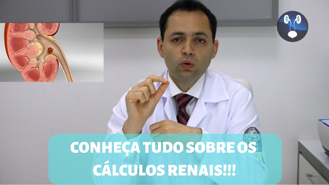 CONHECA TUDO SOBRE OS CALCULOS RENAIS