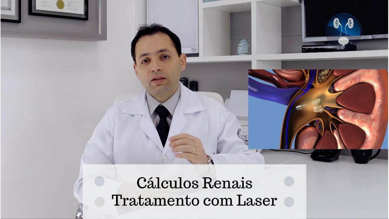 Pedras nos rins laser