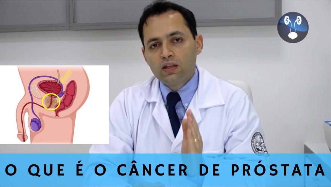 O que e o cancer de prostata