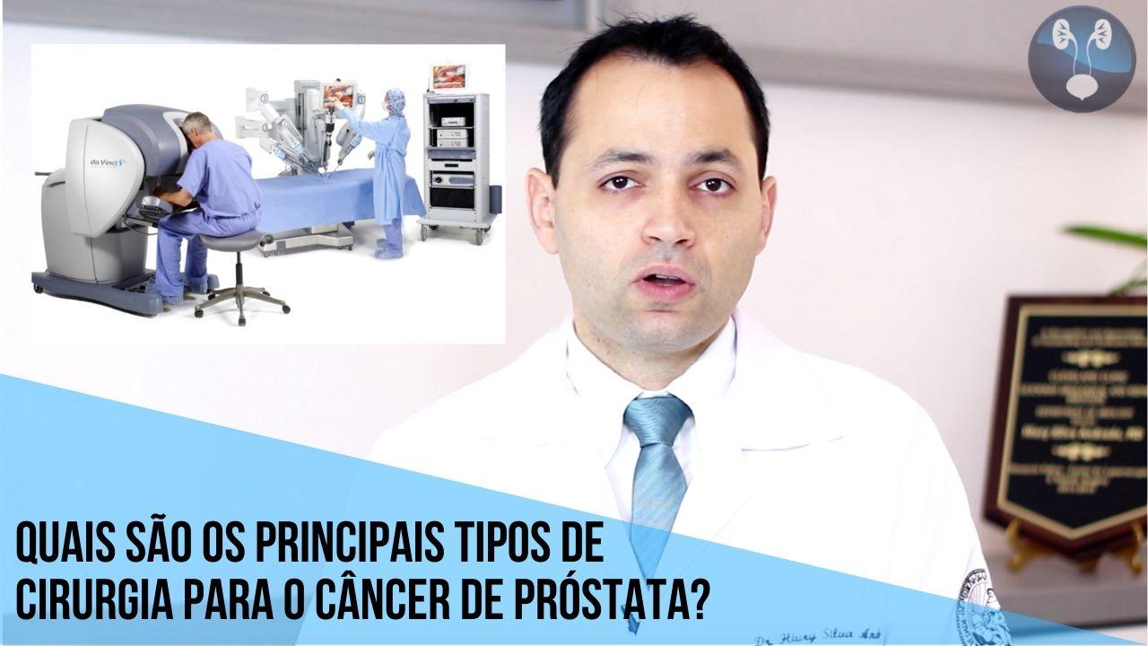 Quais os principais tipos de cirurgia para o cancer de prostata