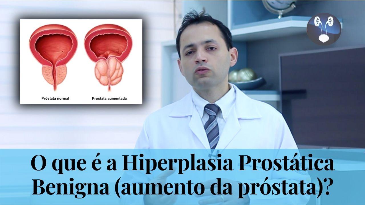 O que e a Hiperplasia Prostatica Benigna - aumento da prostata