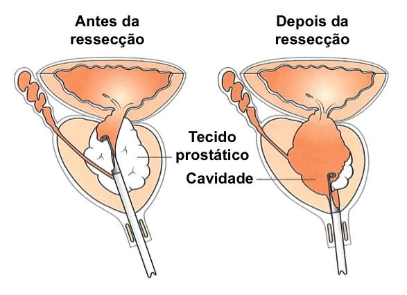 cirurgia da prostata